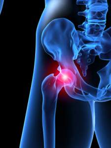 hip pain in runners